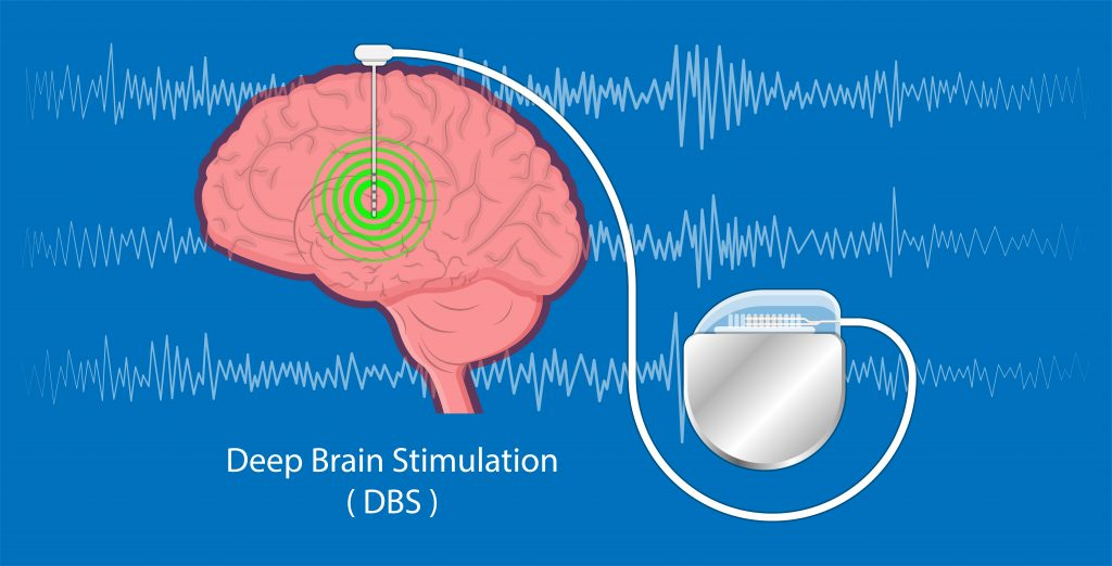 deep brain stimulation for behavioral health services